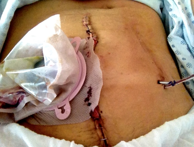 May 2013 surgery (this main incision would be cut through 3 times in total)