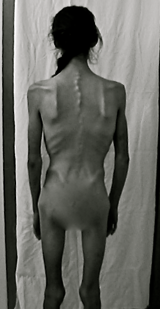 2004/2005 - 58 pounds - state of emaciation after being refused medical help in Ontario.